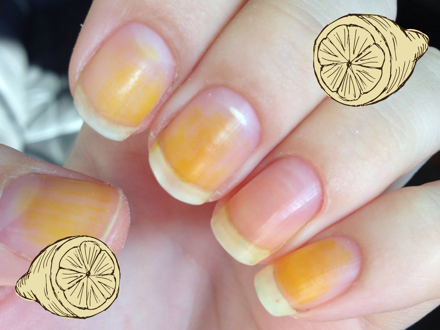 Beauty Tips How To Get Rid Of Yellow Nails In An Easy Way